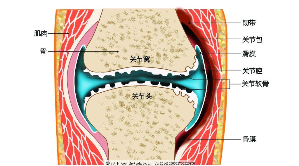 发炎关节 骨关节 骨头 骨骼 腿骨 人体