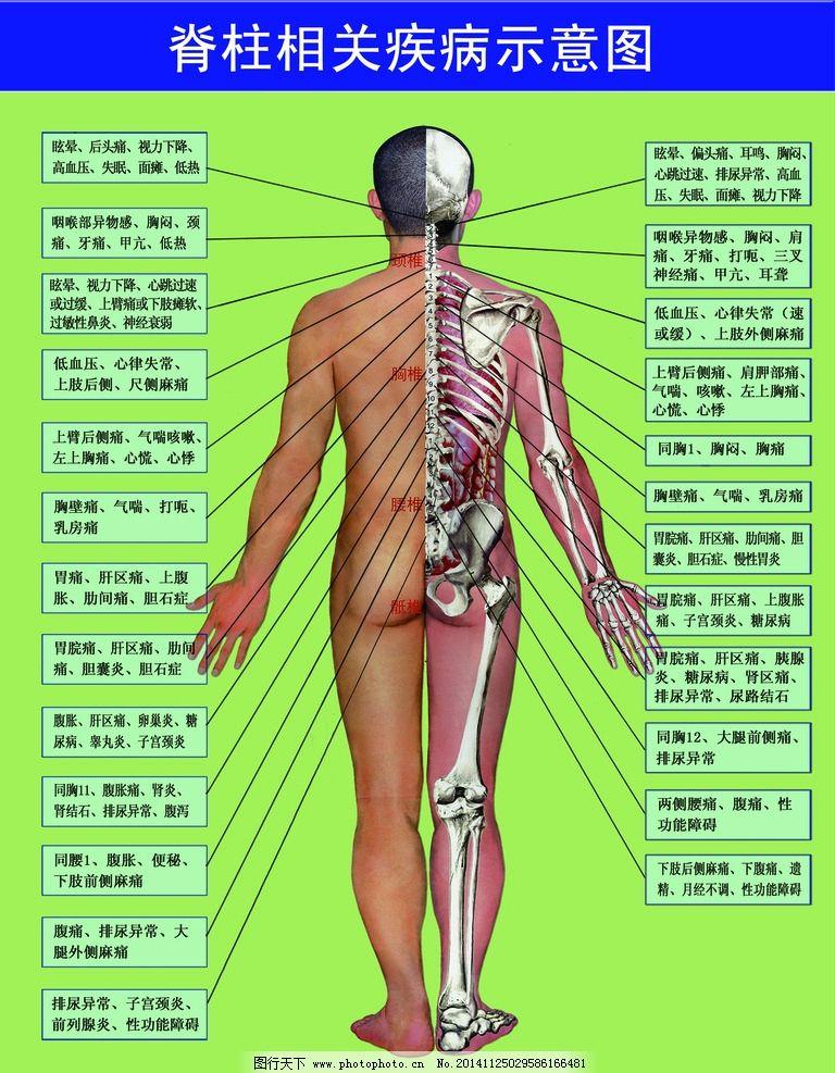 脊柱相关疾病示意图图片